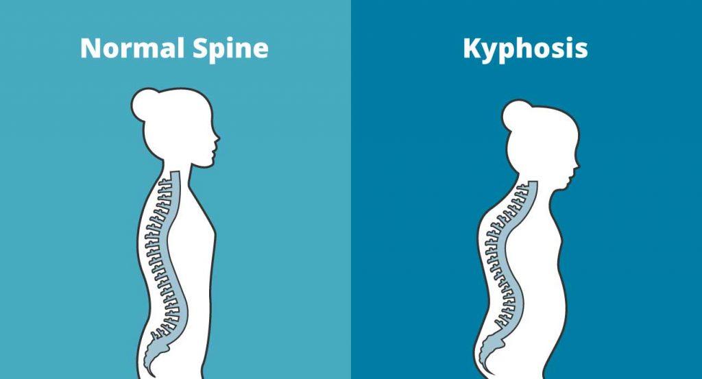 3 Yoga Asanas eficaz para curar cifose
